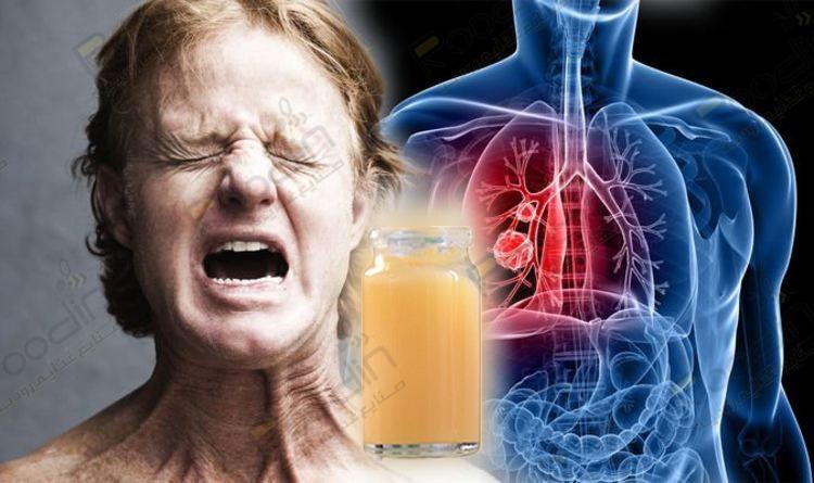 خواص ژل رویال برای سرطان ریه